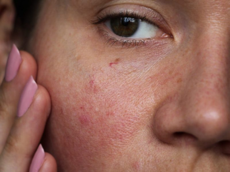 Sensitive Skin – What You Need To Know